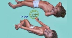 Những biểu hiện trẻ bị sốt cao co giật thường gặp nhất
